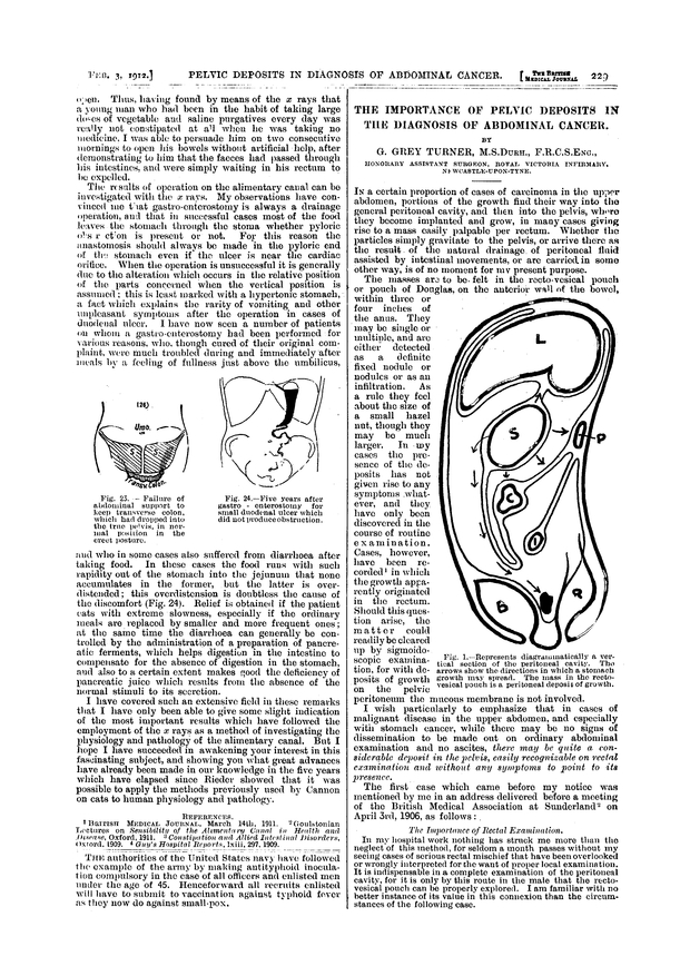 THE IMPORTANCE OF PELVIC DEPOSITS IN THE DIAGNOSIS OF