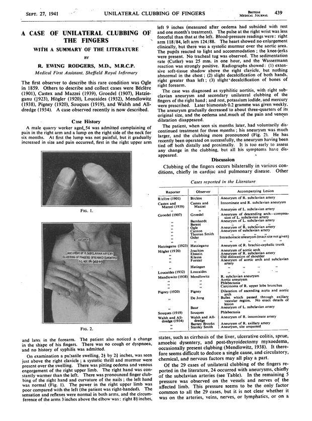 unilateral clubbing of the fingers with a summary of the literature