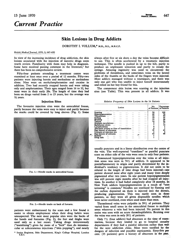 Skin Lesions in Drug Addicts   The BMJ