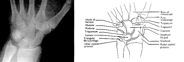 Abc Of Emergency Radiology The Wrist The Bmj
