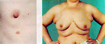 ABC of Breast Diseases: Congenital Problems and Aberrations