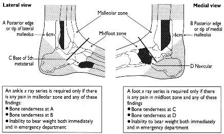 the ottawa ankle rules nursing essay Chapter 45 advanced nursing roles  patient is referred to cin nurse who orders left ankle x-ray according to ottawa ankle rules, application of rest/ice/elevation due to level of pain, cin inserts iv cannula, places patient on oxygen saturation monitoring and initiates administration of iv morphine 25 mg bolus as per nurse initiated protocol.