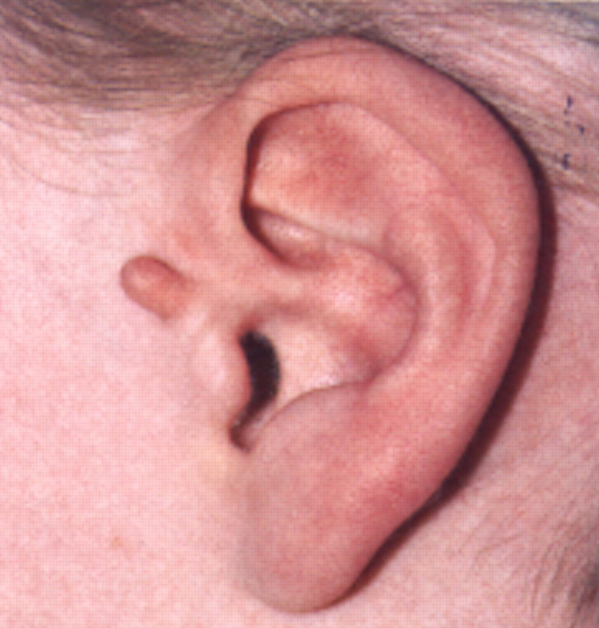 ABC of General Surgery in Children: LUMPS AND SWELLINGS OF THE HEAD ...