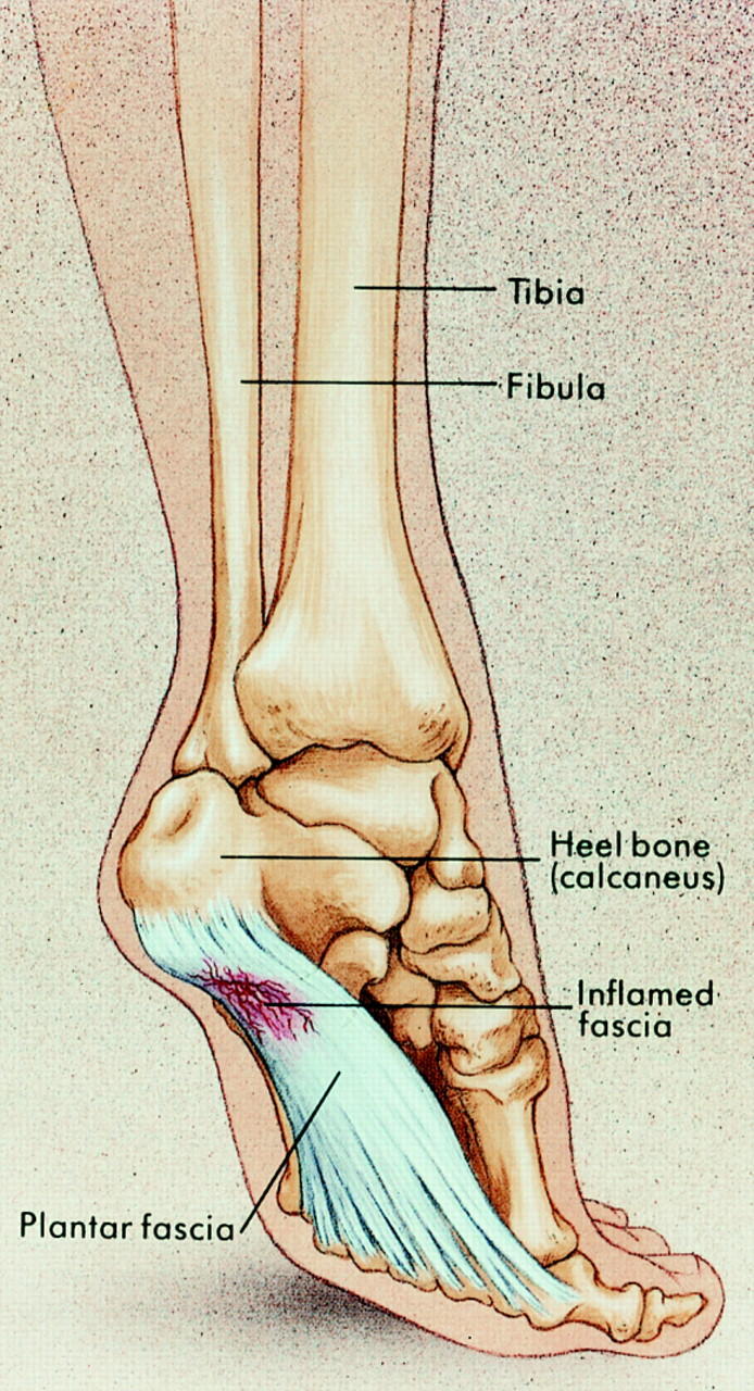 Fortnightly review: Plantar fasciitis | The BMJ