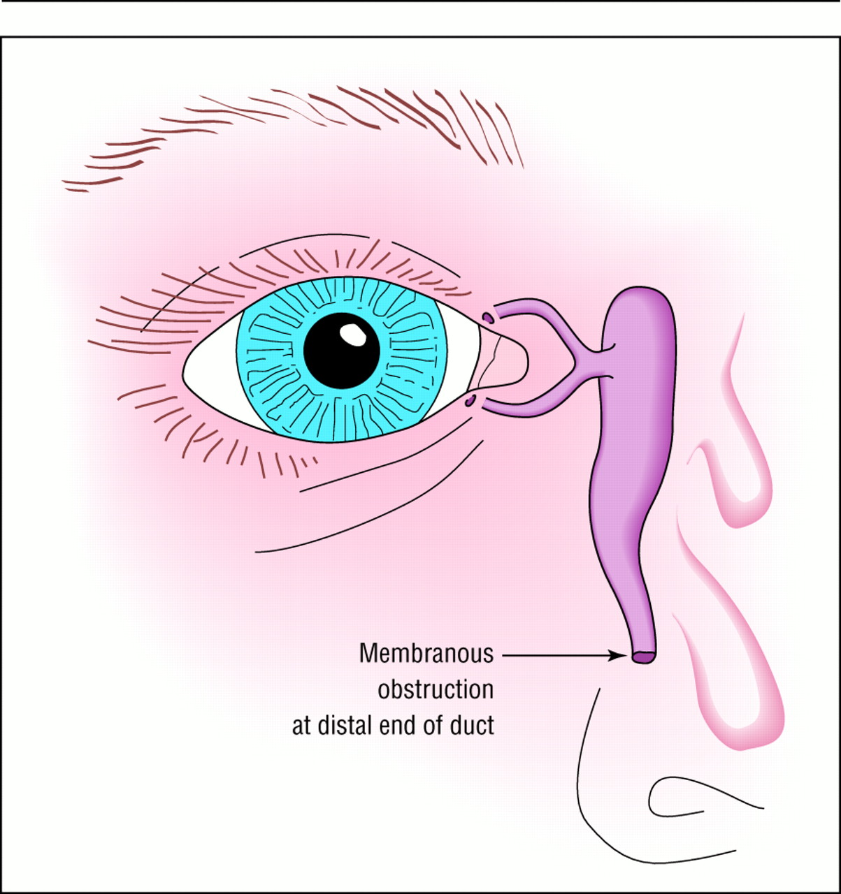 Fortnightly review: Managing congenital lacrimal obstruction in ...