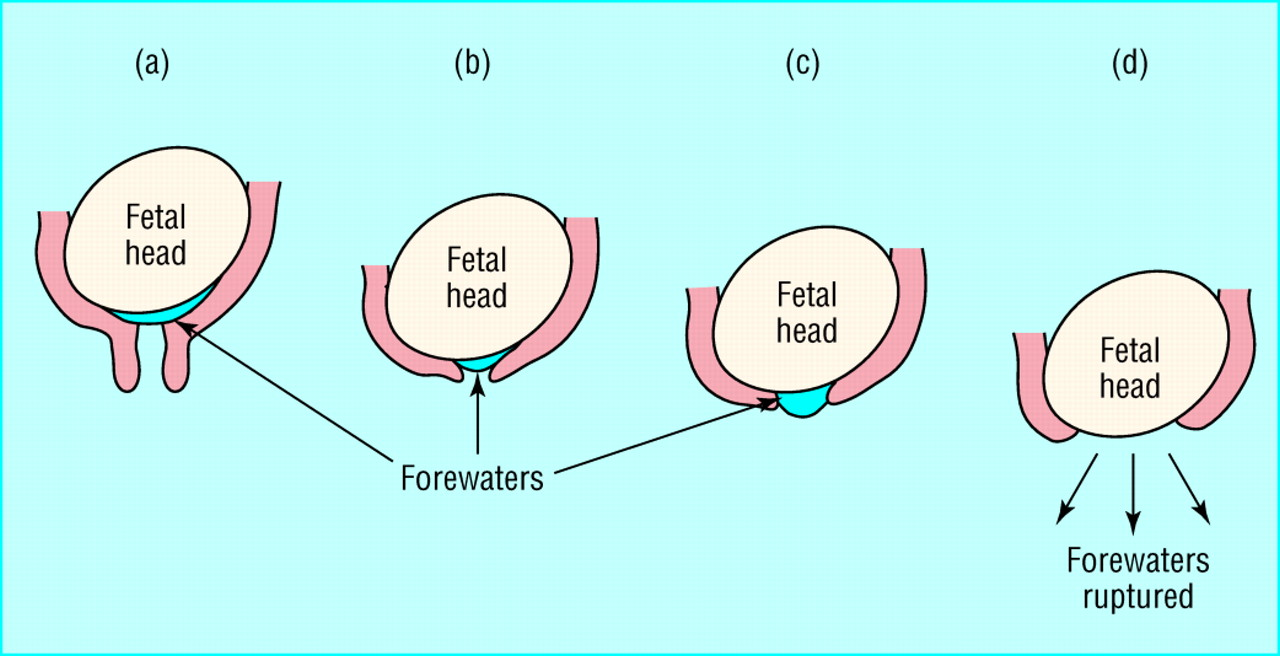 Physiology and management of normal labour