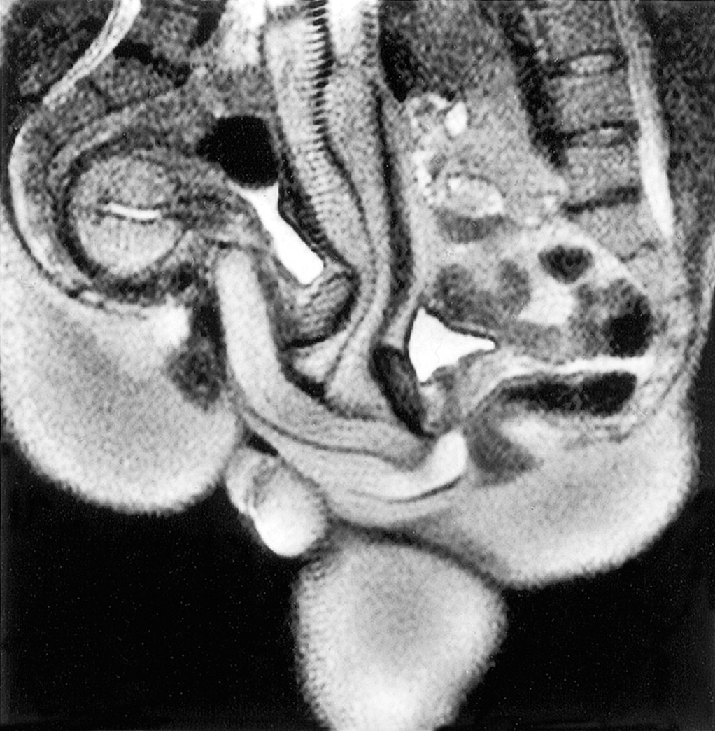 Magnetic Resonance Imaging Of Male And Female Genitals During Coitus