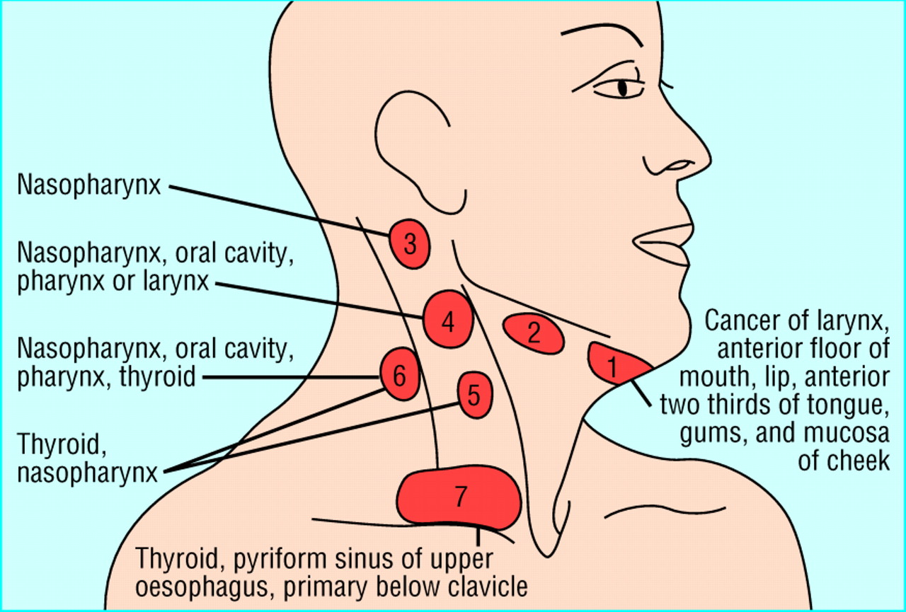 Management of lateral neck masses in adults | The BMJ