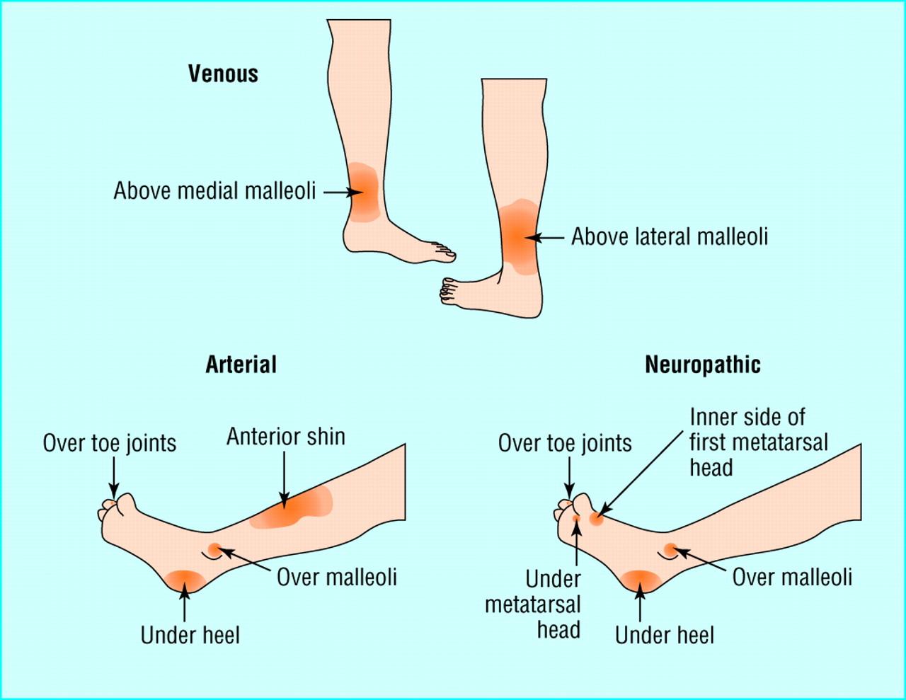 management of leg ulcers essay