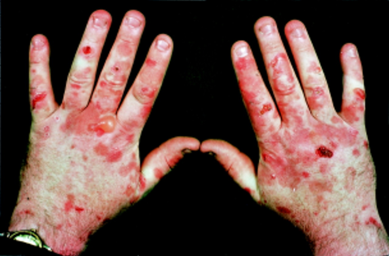 Porphyria (disease): symptoms, causes, treatment 94