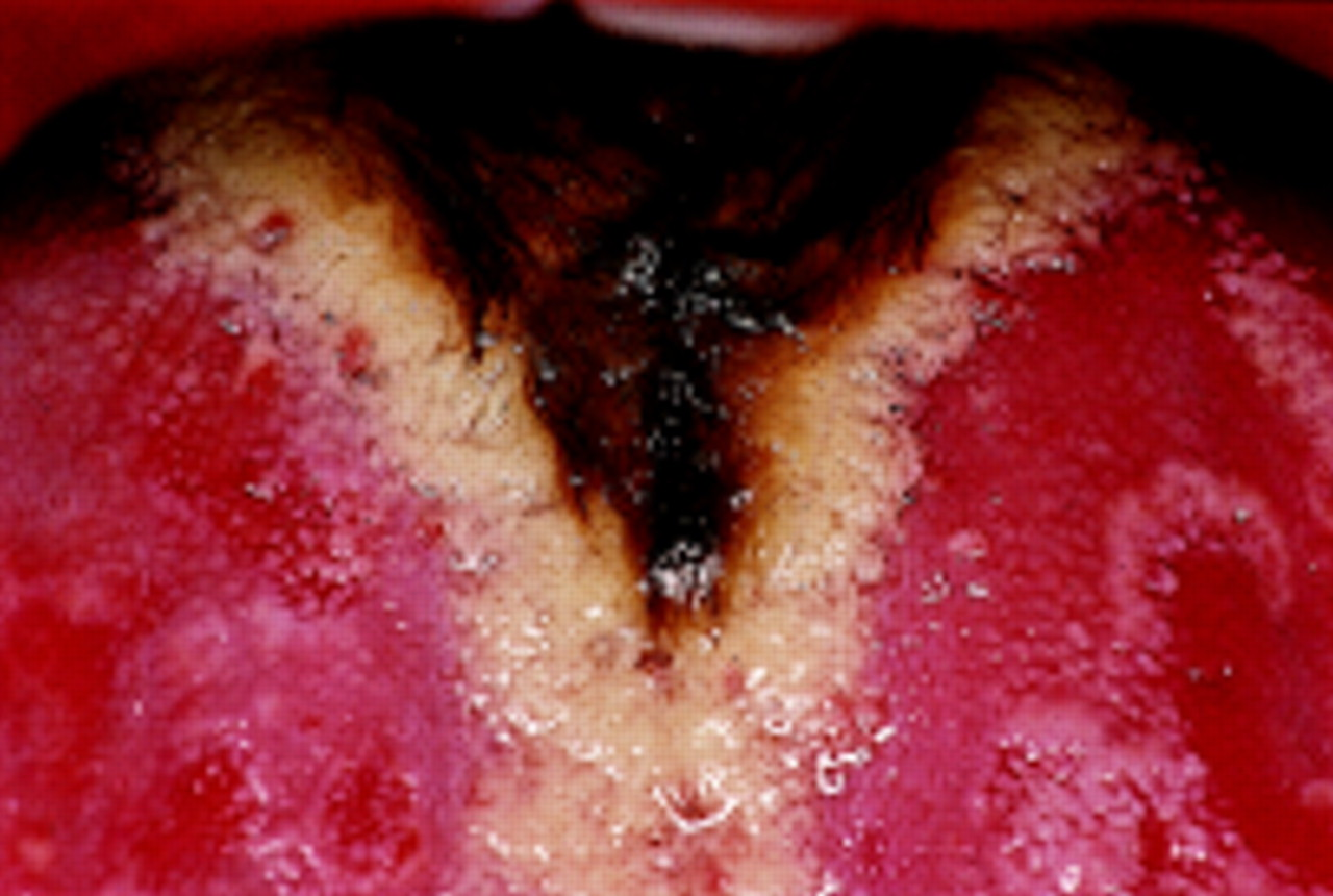 Swellings and red, white, and pigmented lesions | The BMJ