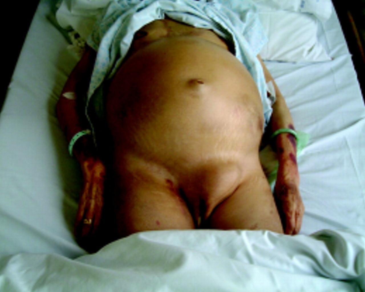 portal hypertension 2 ascites encephalopathy and other conditions