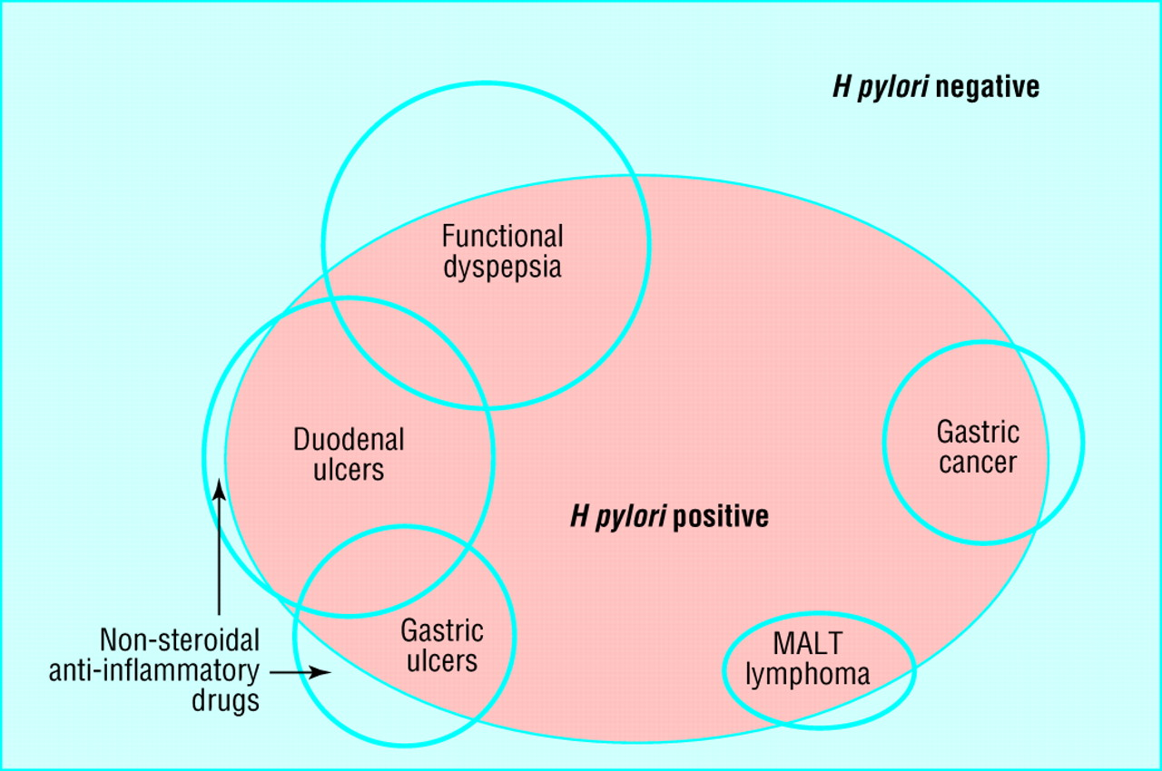 relation of h pylori infection to upper gastrointestinal conditions