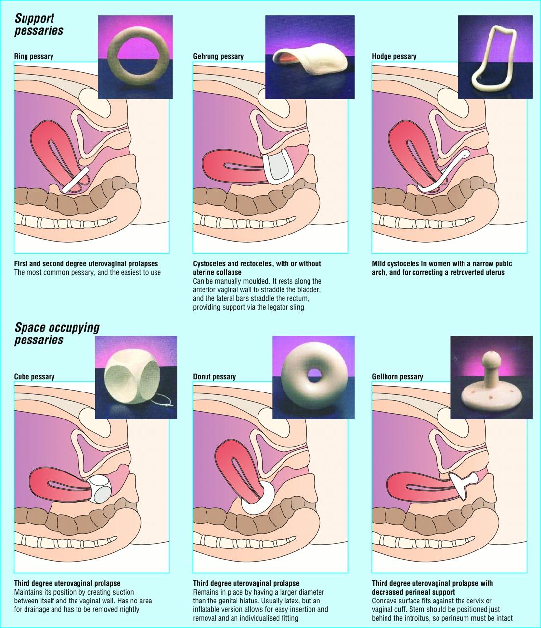 Vaginal pessary insertion pity