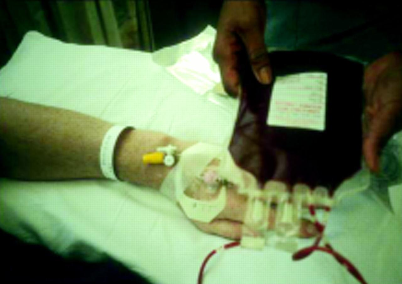 Reduce  Transfusion