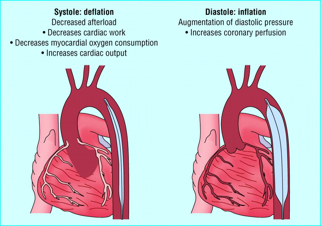 Percutaneous Coronary Intervention  Cardiogenic Shock