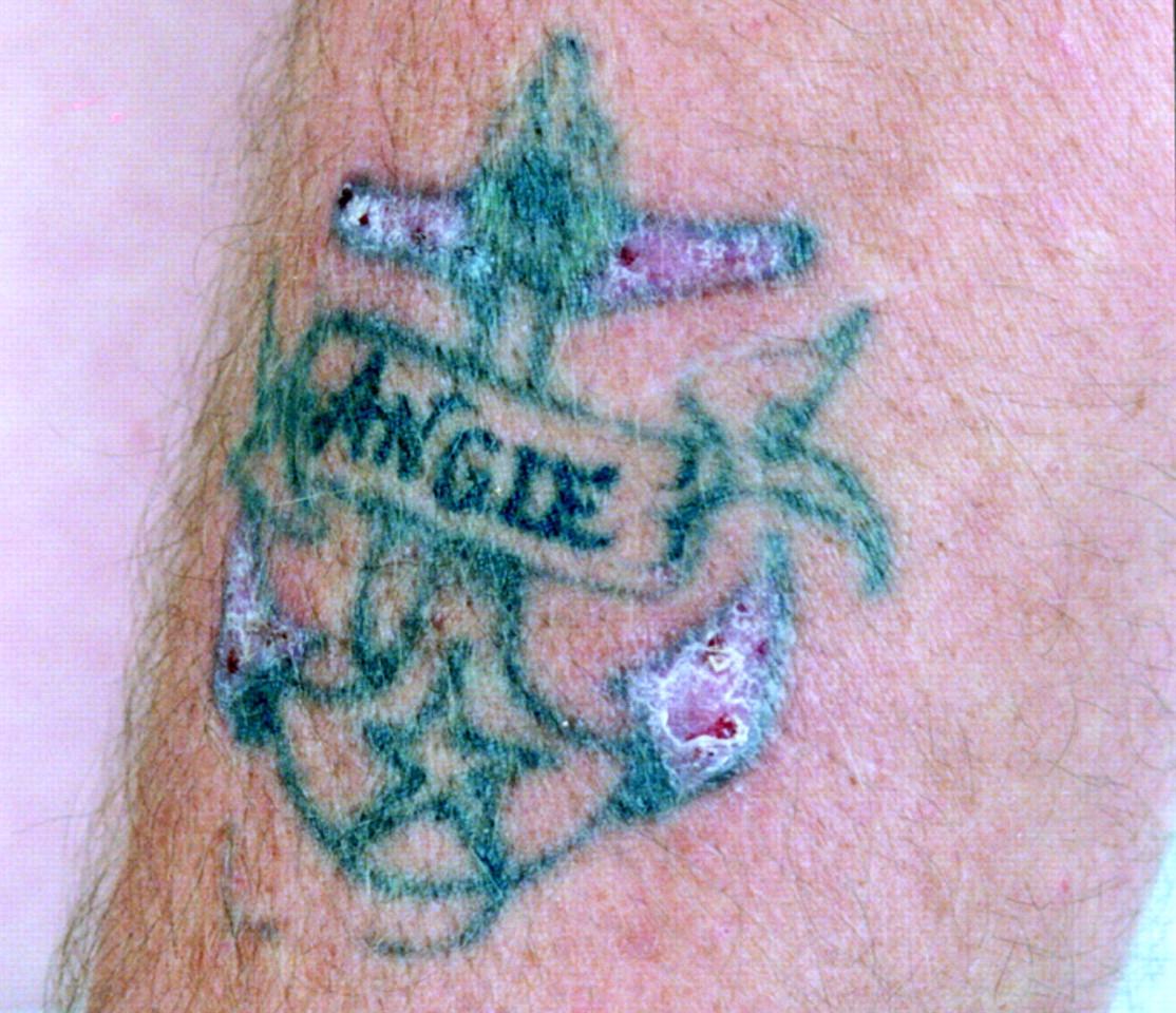 He had had tattoos