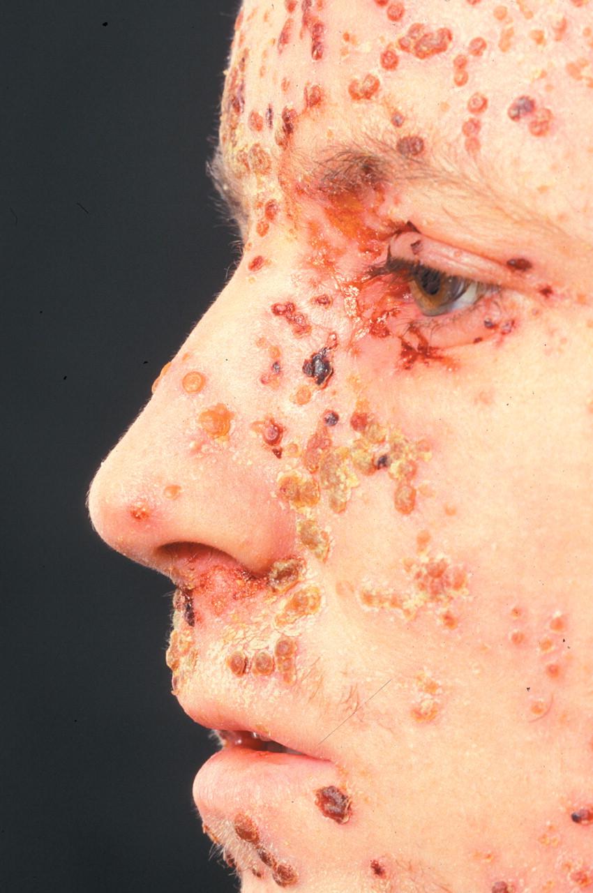 More common skin infec...