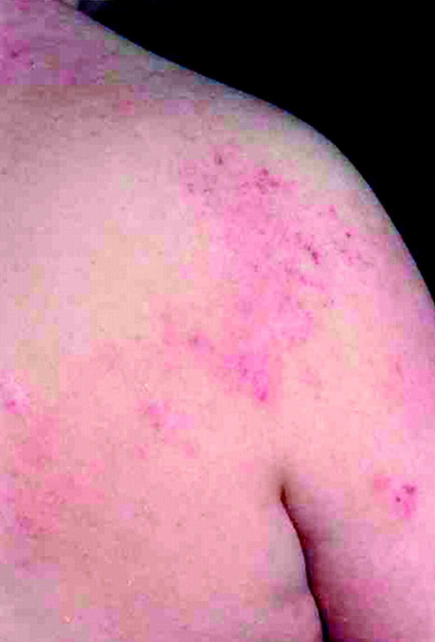 Image Result For Probiotics For Herpes