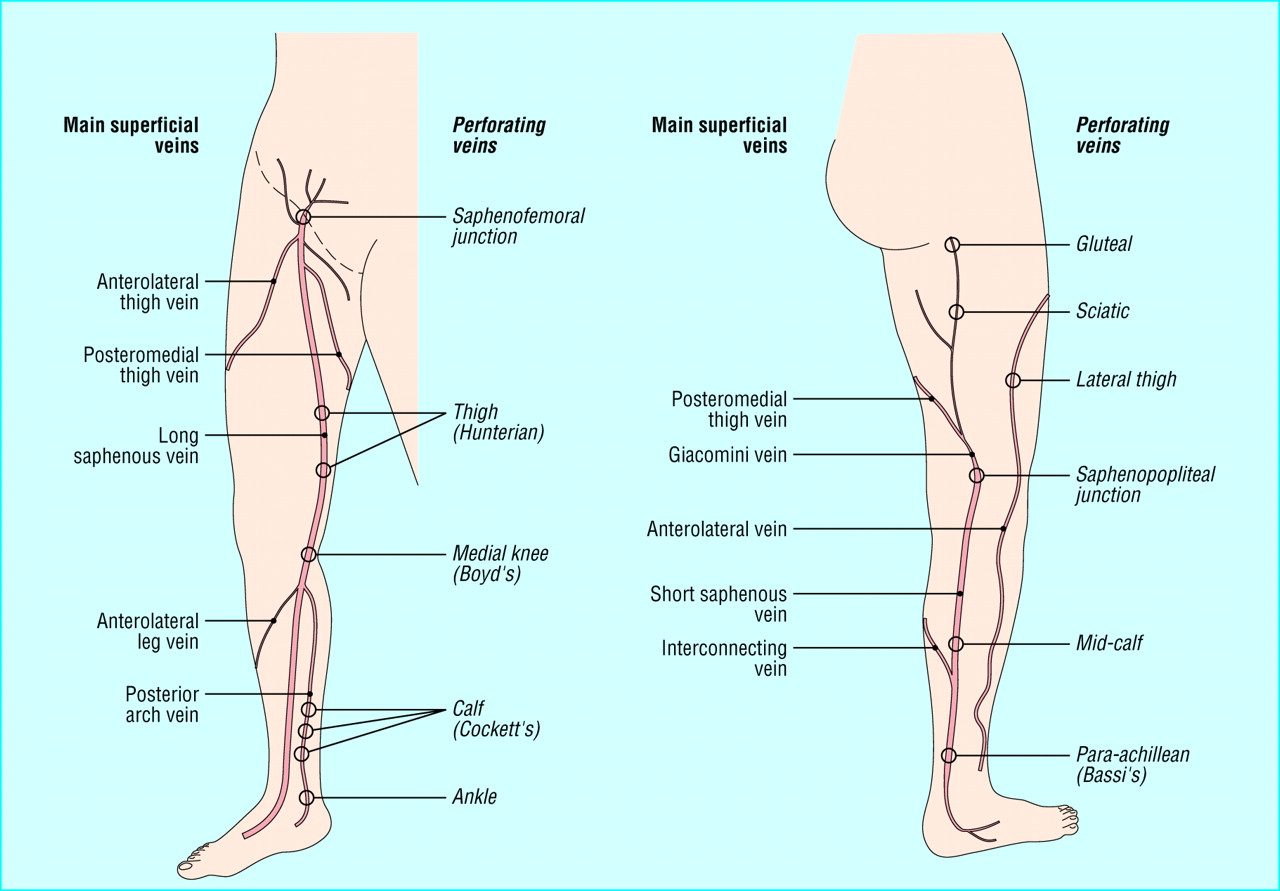 Varicose Veins And Their Management The Bmj