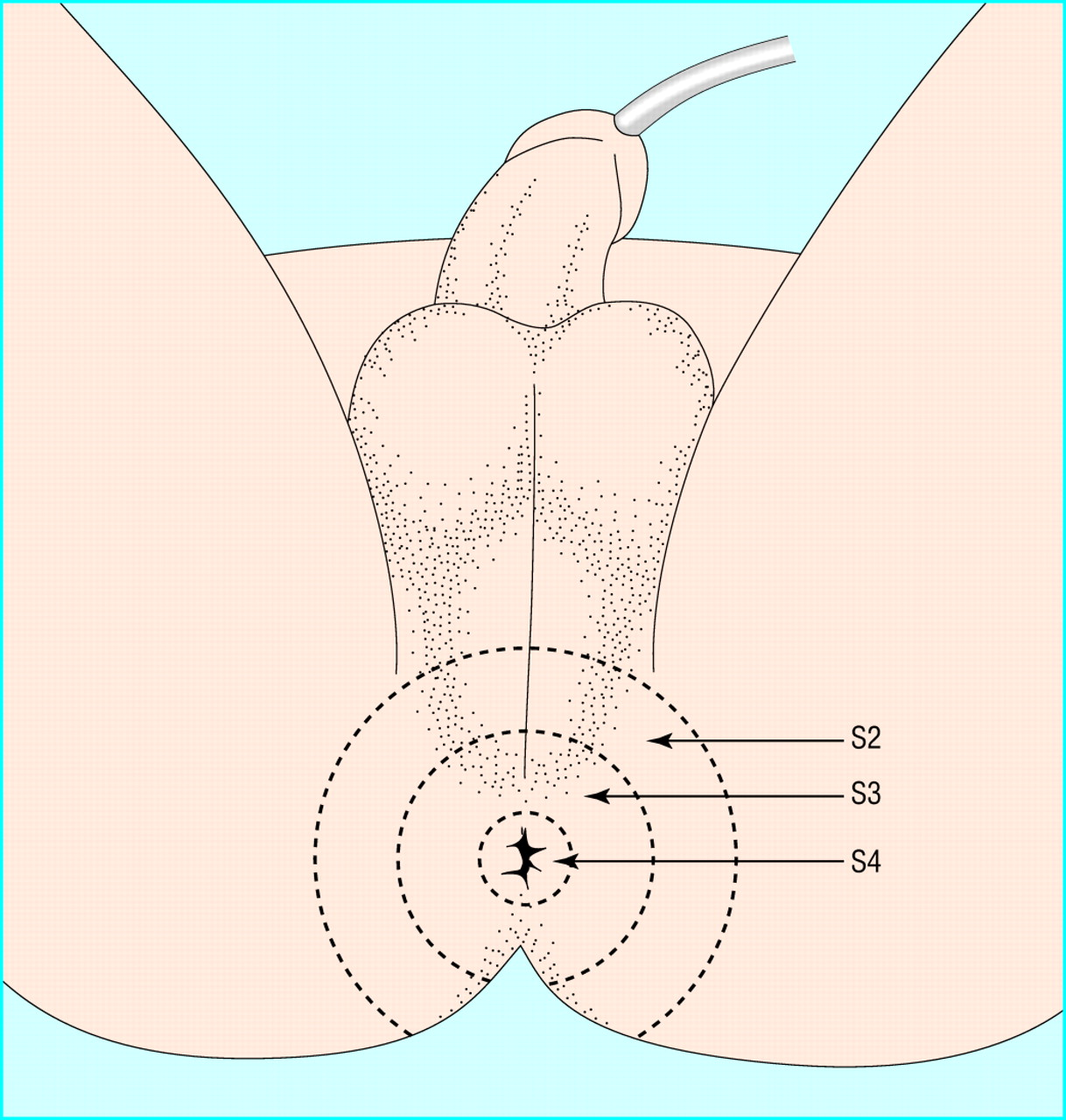 Precise Calibrated Anal Sphincter Dilatation