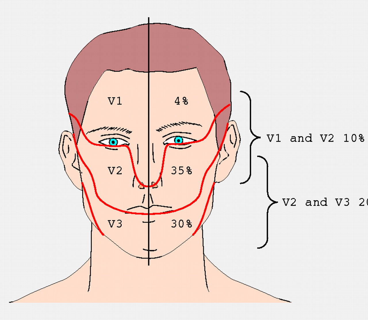 Facial neuralgia pain topamax