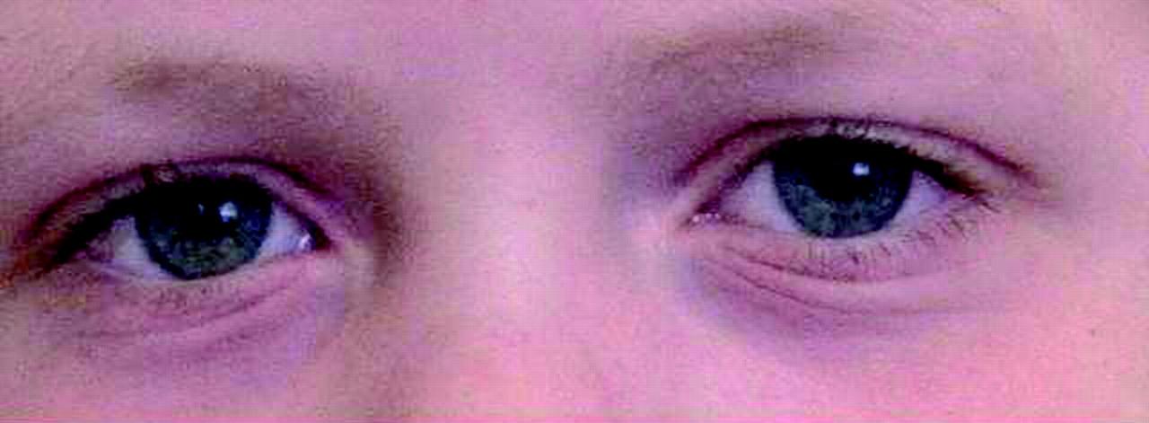 Allergic rhinoconjunctivitis in children | The BMJ