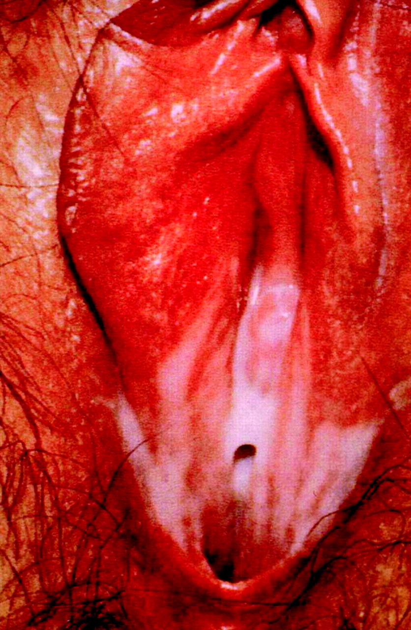 Vaginal discharge | The BMJ