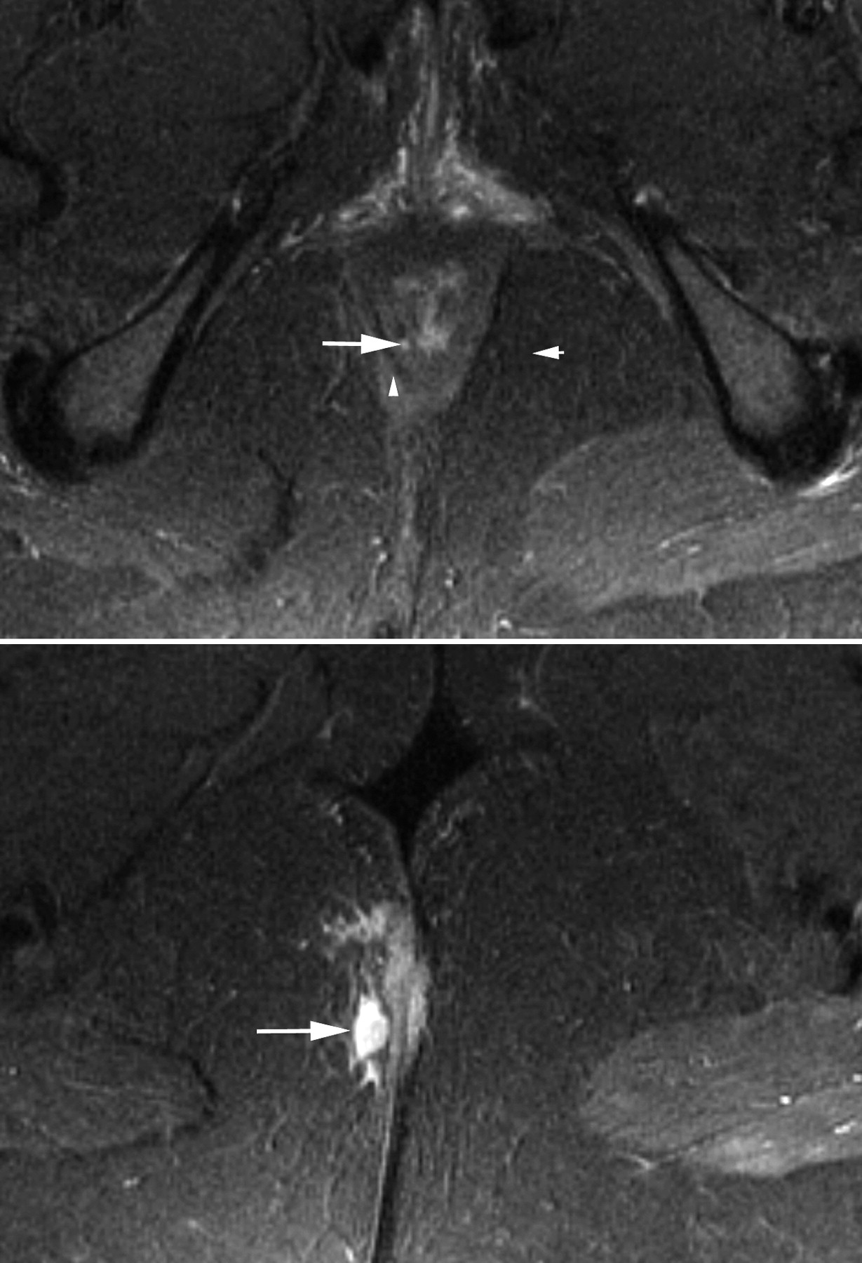 Investigating perianal pain of uncertain cause | The BMJ