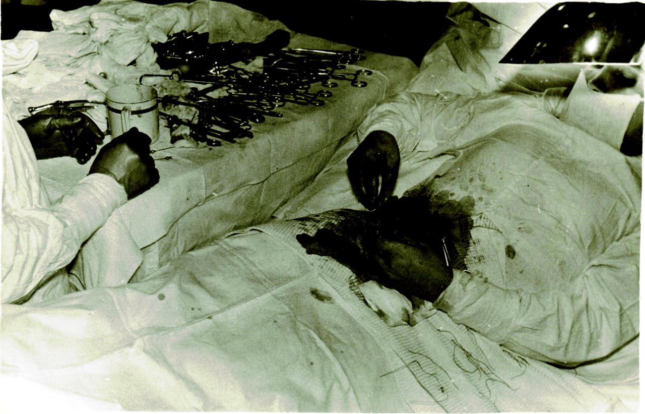 Рассказы про аппендицит 5 фотография