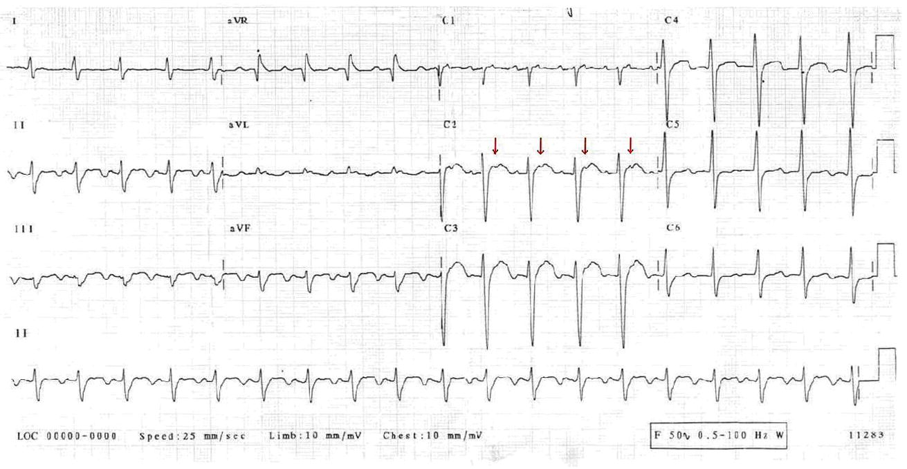 tachycardia due to atrial flutter with rapid 1 1 conduction