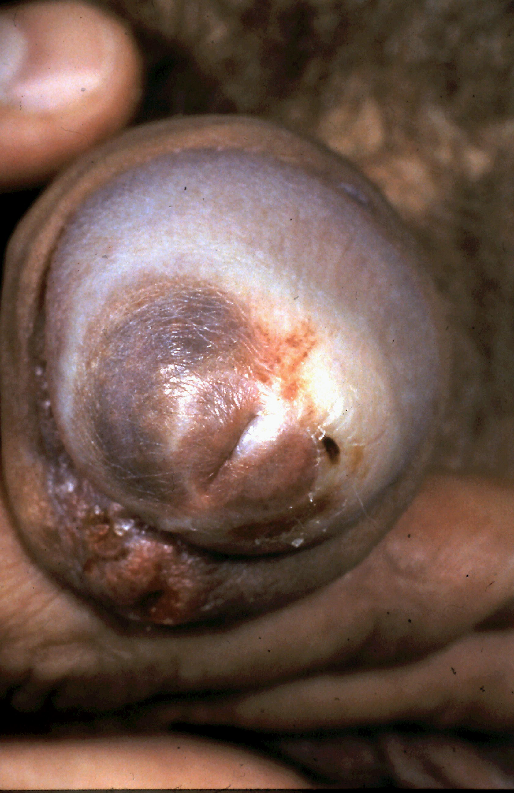 Anal lichen planus that interrupt