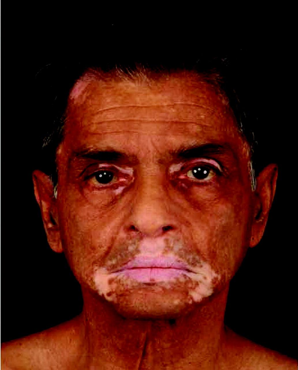 Vitiligo   The BMJ