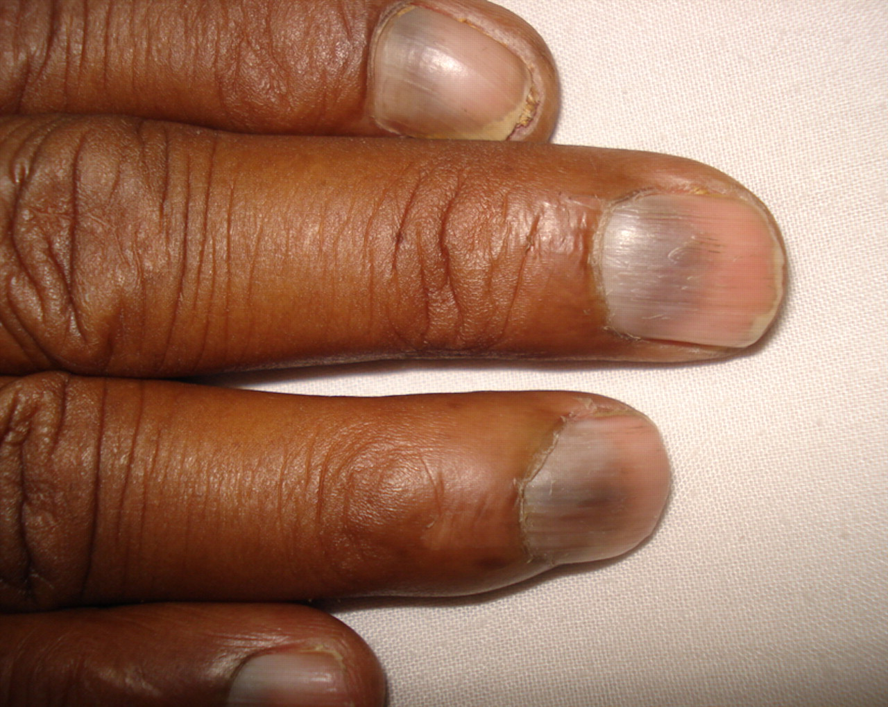 Nail changes in a patient with leukaemia   The BMJ