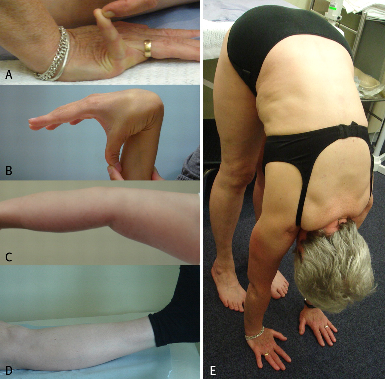 Joint hypermobility syndrome   The BMJ