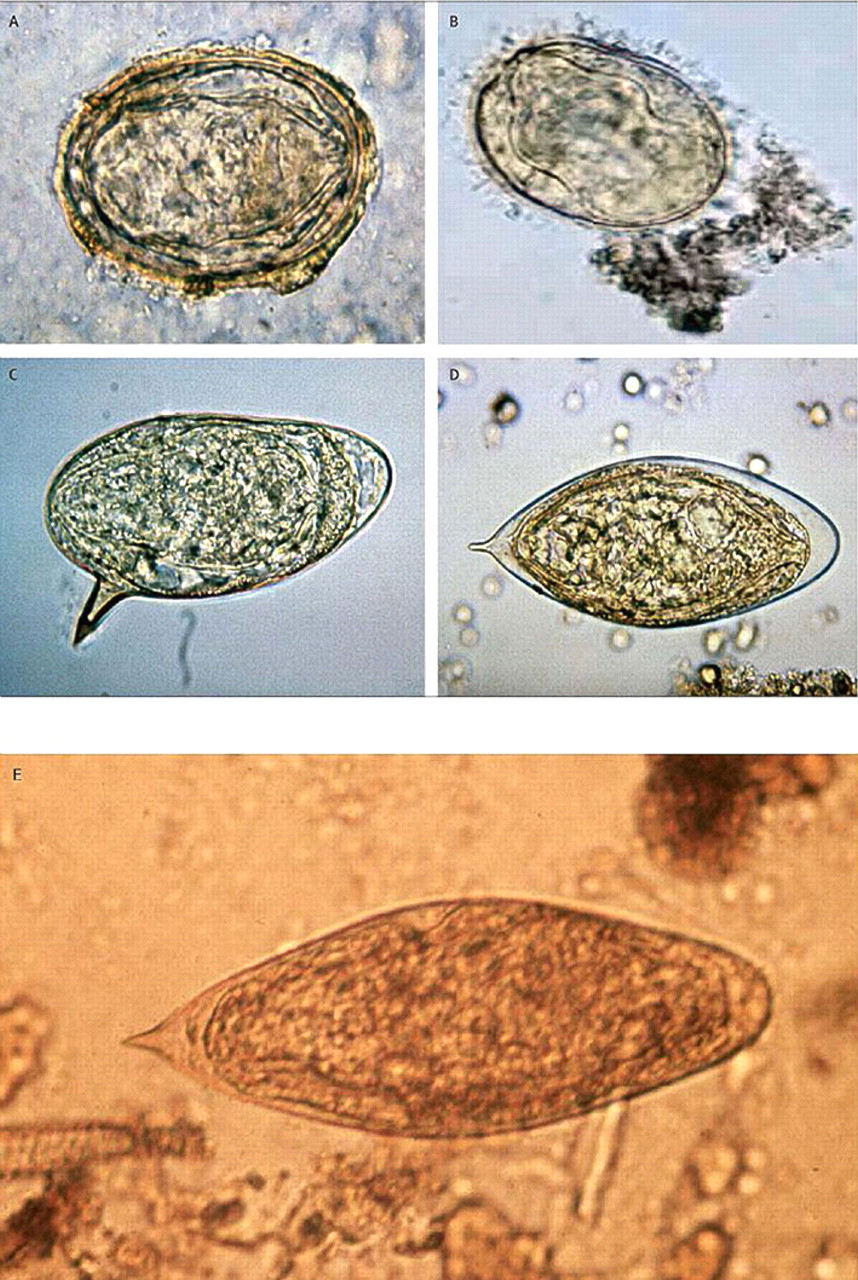 Diagnosis And Management Of Schistosomiasis The Bmj