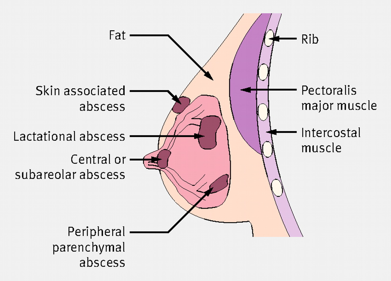 Treatment Of Breast Infection