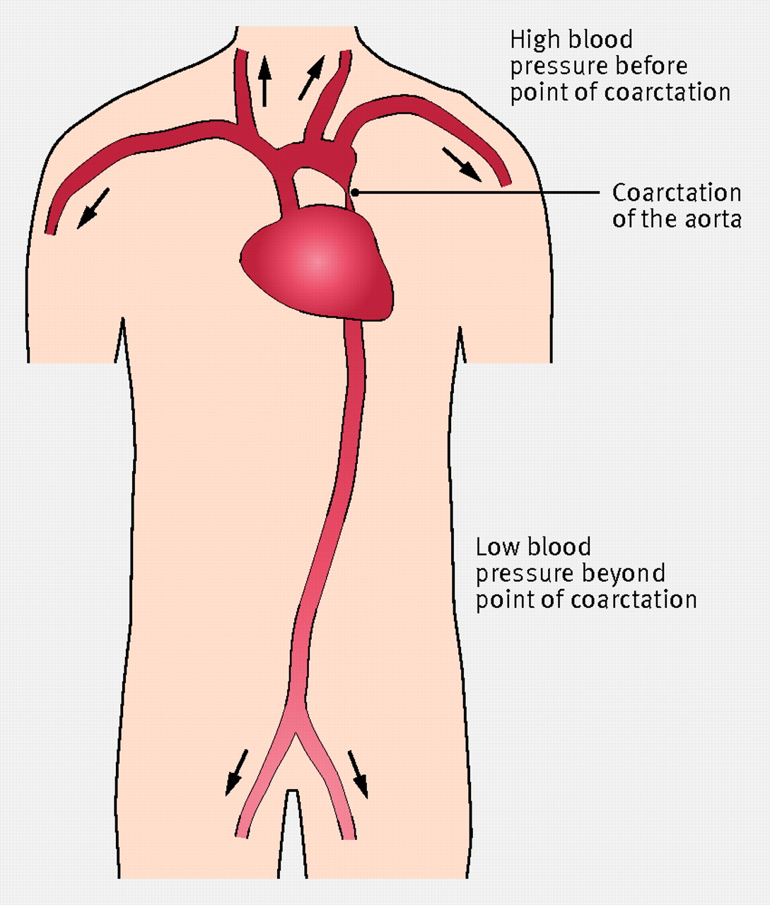 Coarctation Of The Aorta In The Newborn The Bmj