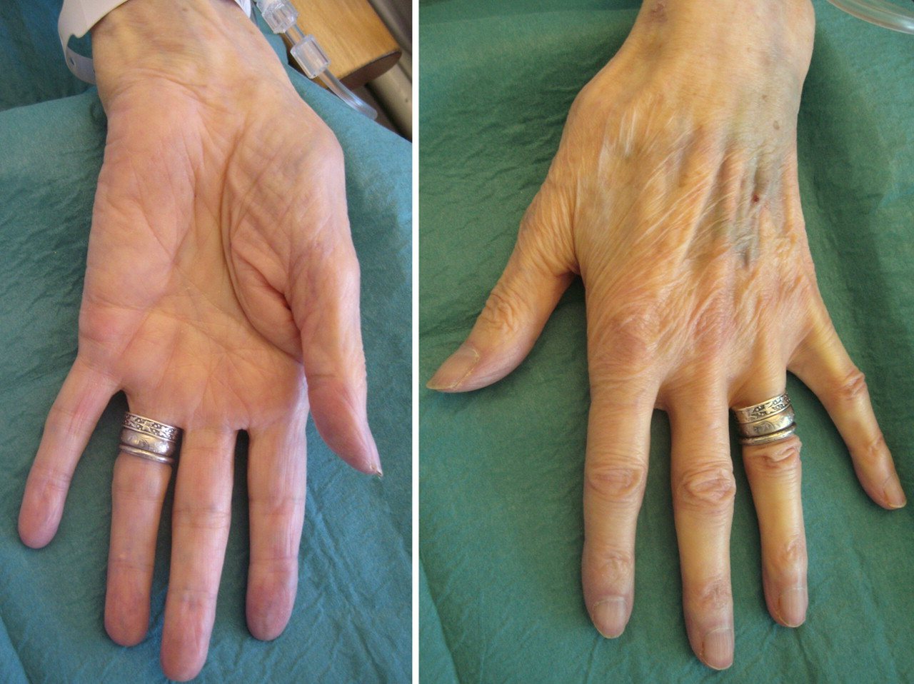 Osteoarthritis at the base of the thumb | The BMJ