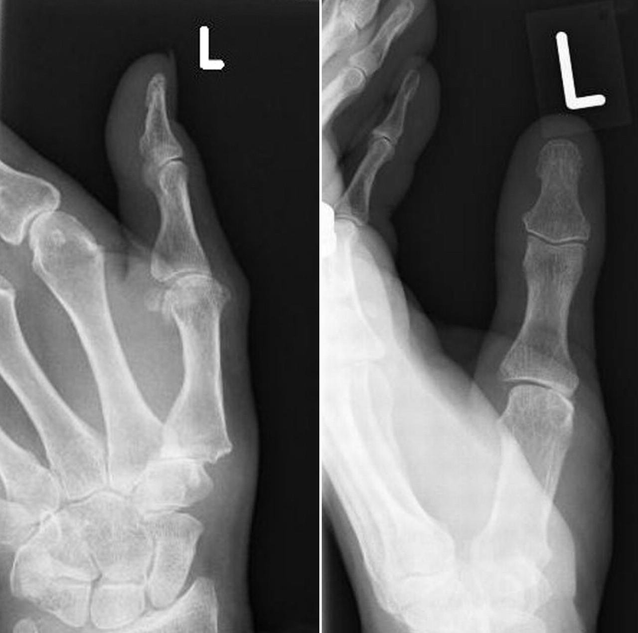 osteoarthritis at the base of the thumb the bmj
