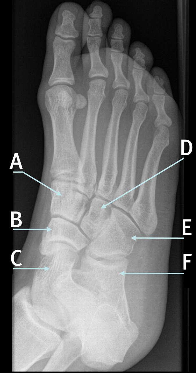 Anatomy Of The Bones Of The Foot The Bmj