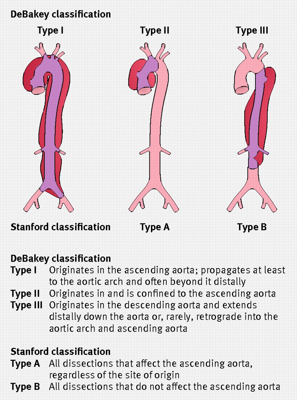 The diagnosis and management of aortic dissection   The BMJ