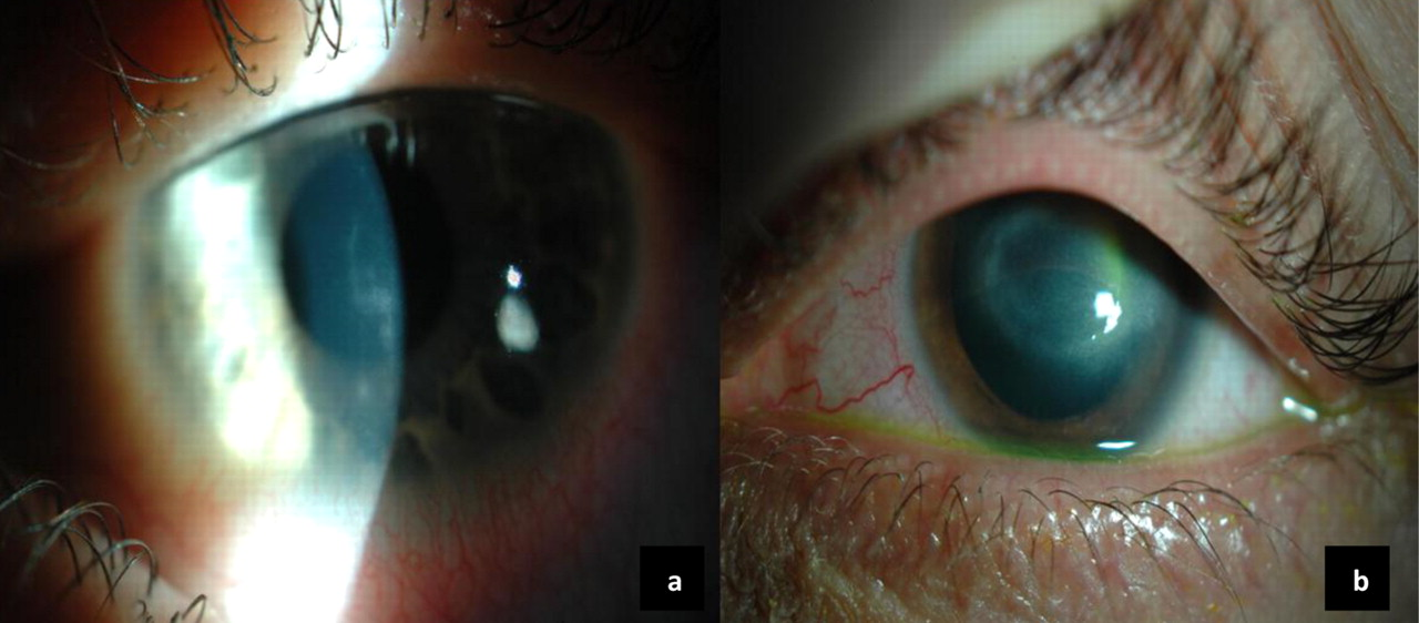 Increase in acanthamoeba keratitis may be associated with use of ...