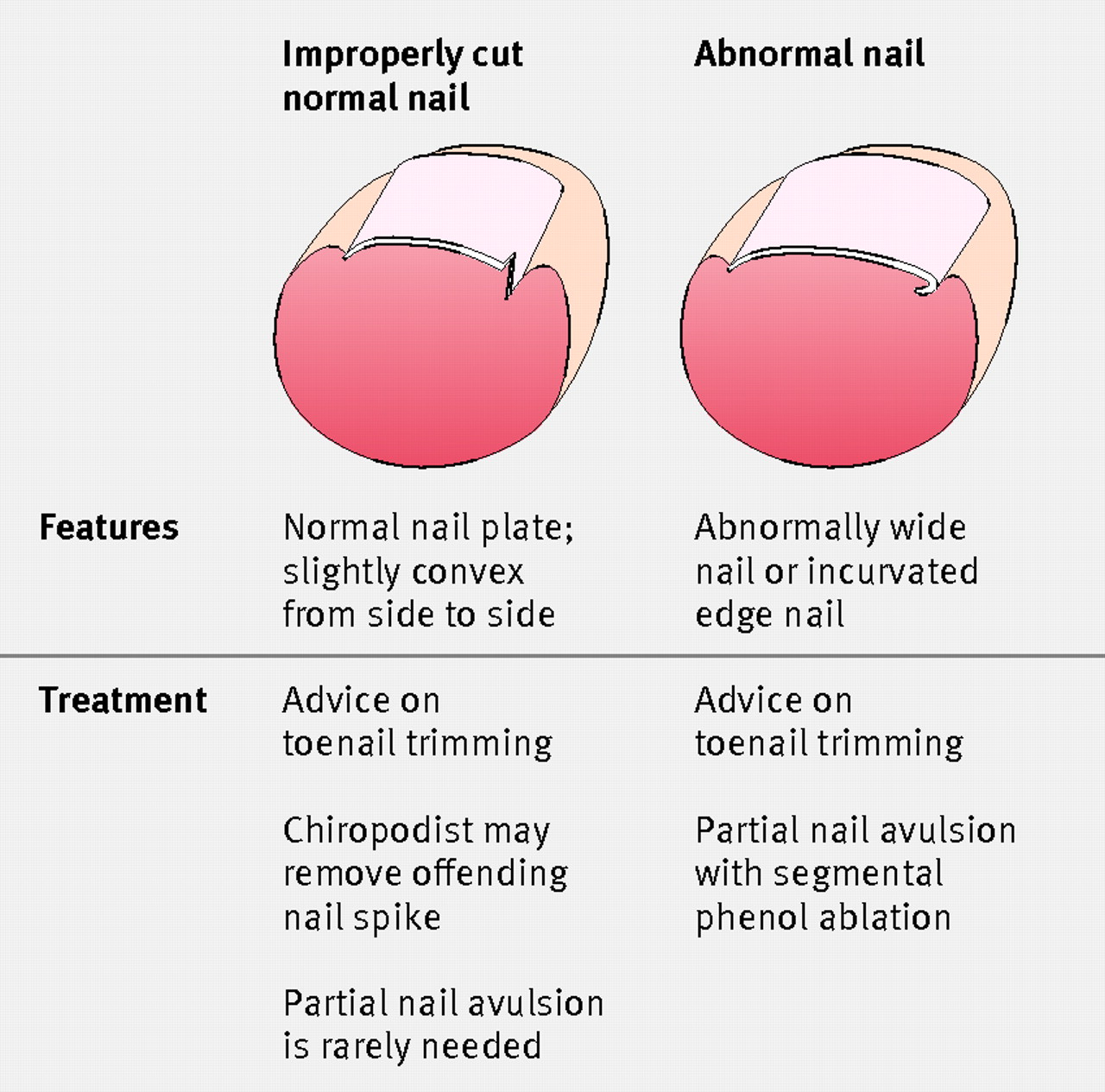 Fig 3 Management Options For Normal And Abnormal Toenails