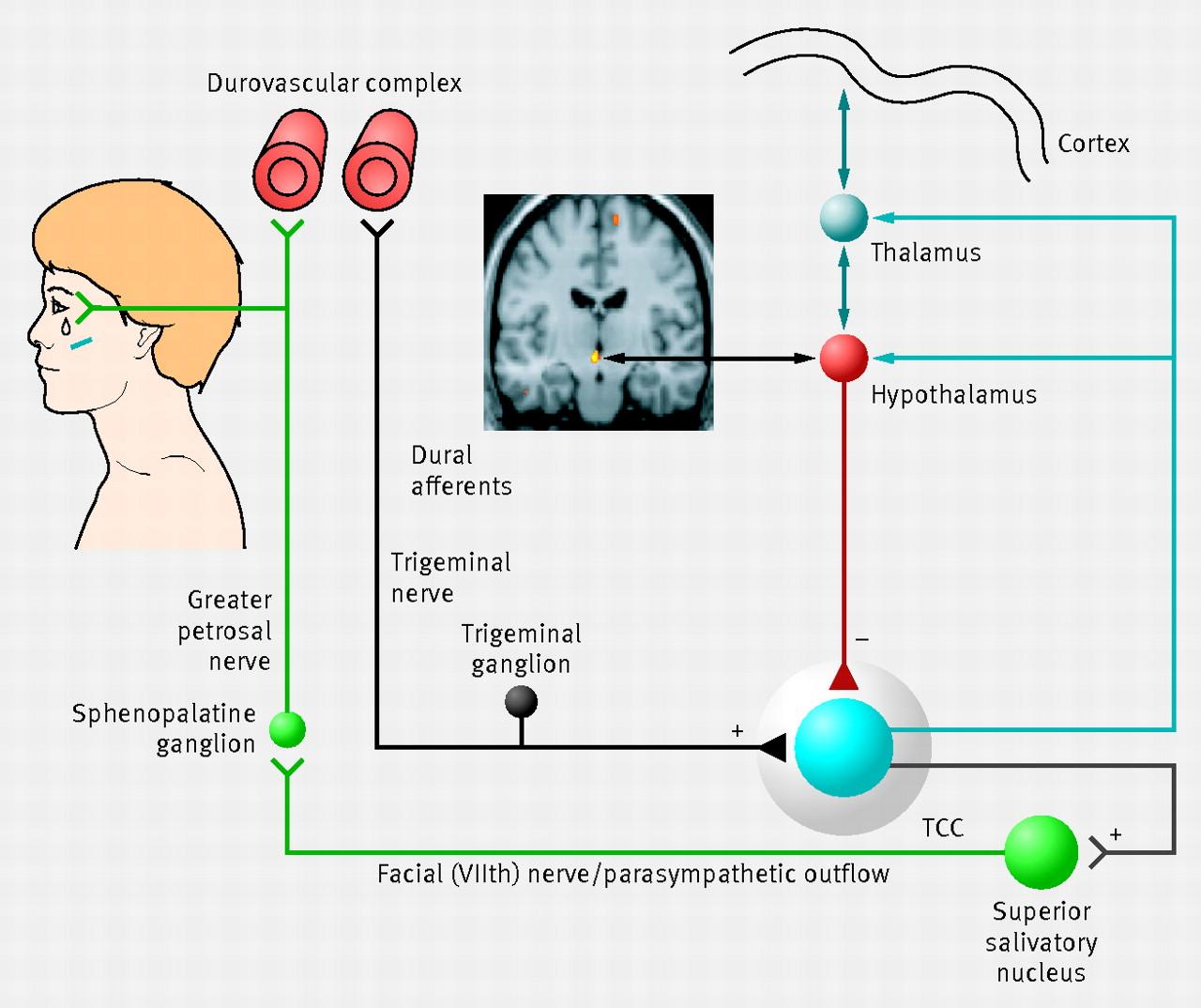 Cluster headache | The BMJ