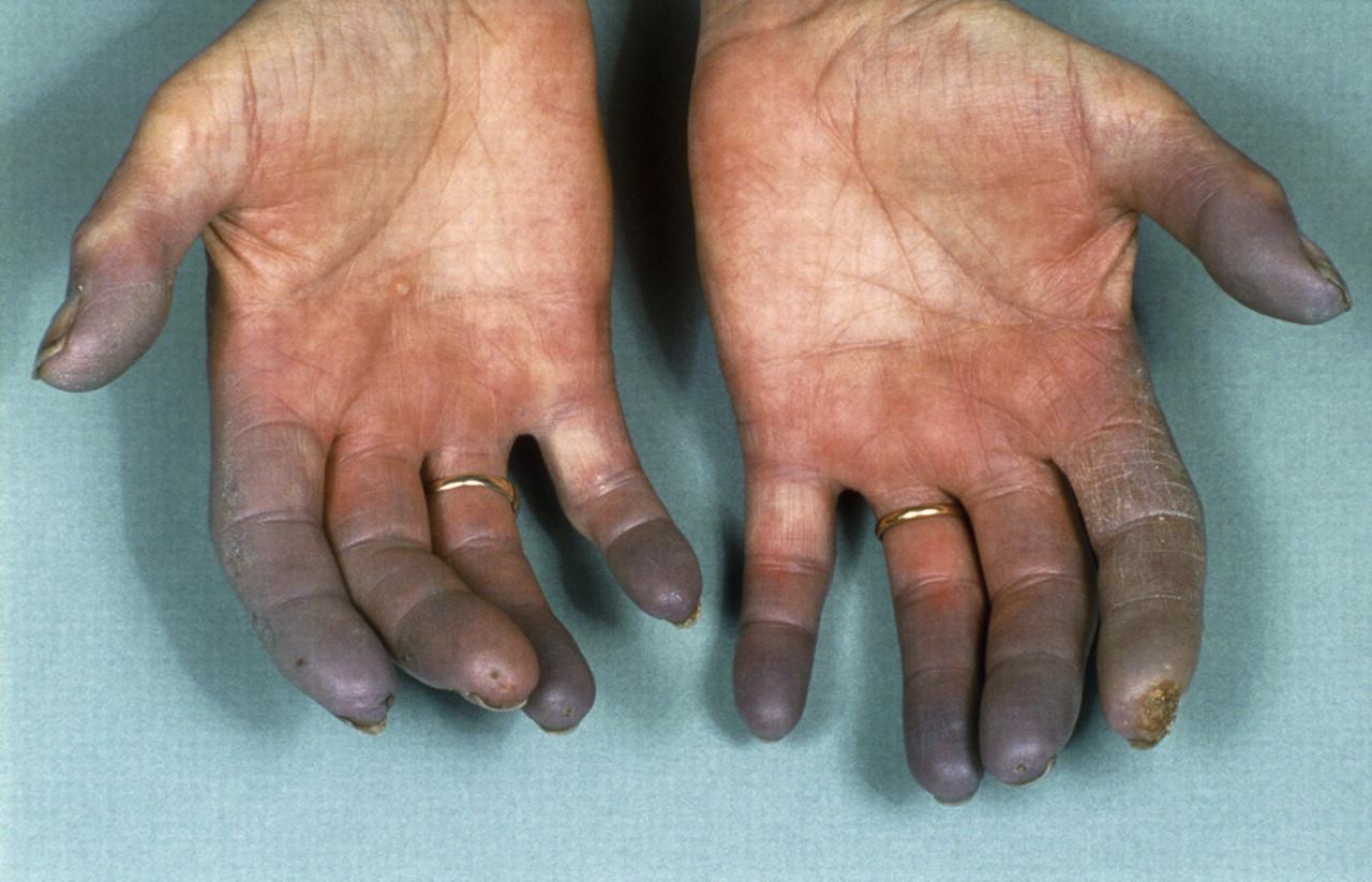 Raynaud's Phenomenon. Reynaud's syndrome treatment