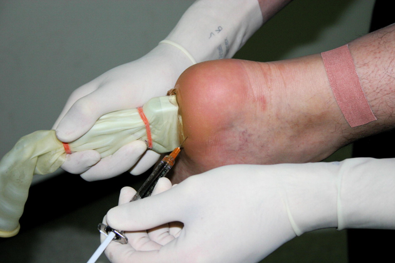 Ultrasound guided corticosteroid injection for plantar