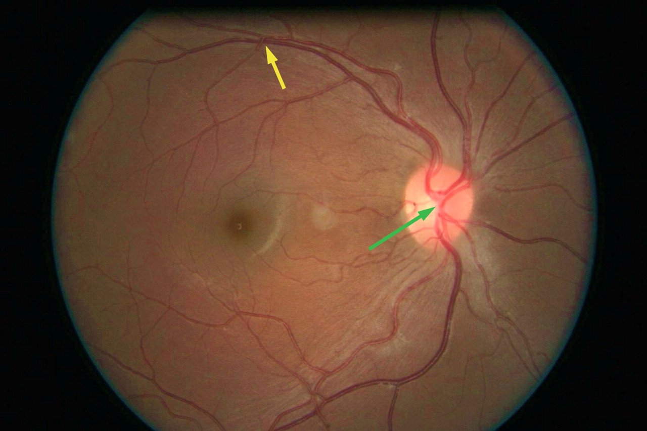 Managing retinal vein occlusion | The BMJ