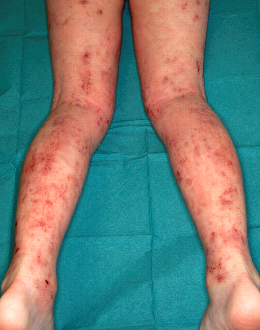 Management Of Difficult And Severe Eczema In Childhood