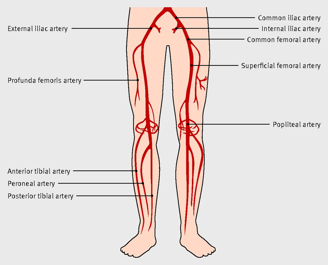 Diagnosis and management of peripheral arterial disease | The BMJ